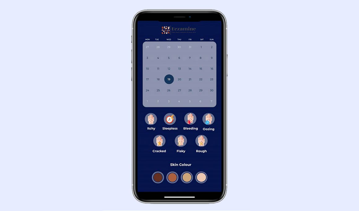 Eczamine eczema tracker and flare-up app