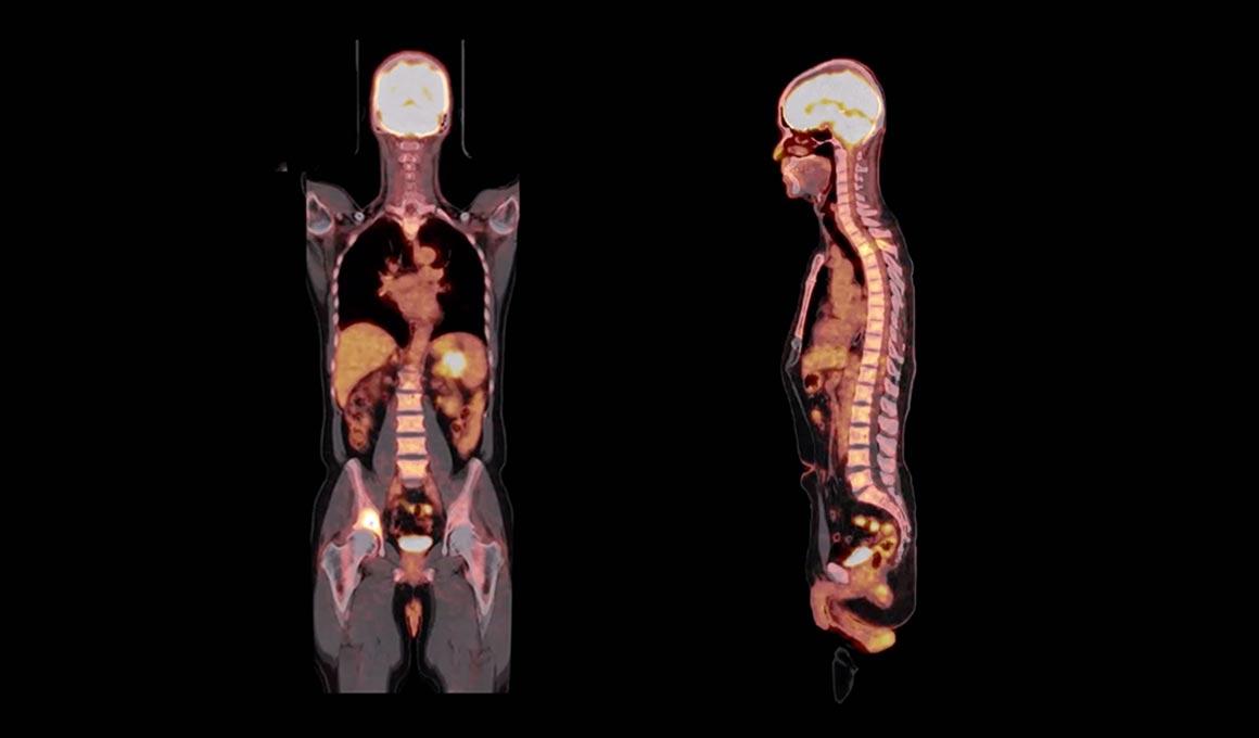 Subtle Medical - AI powered medical imaging