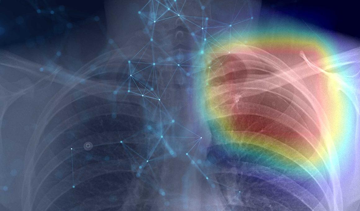 AI medical imaging and diagnostics