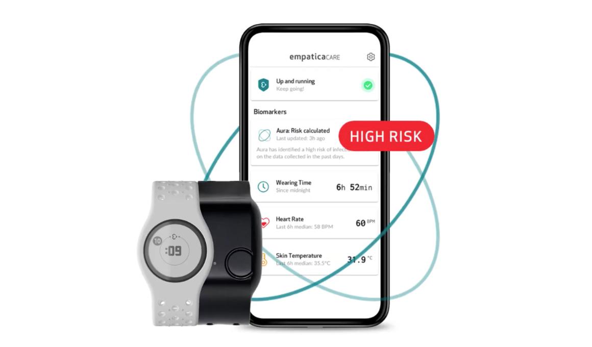 Aura - wearable AI system